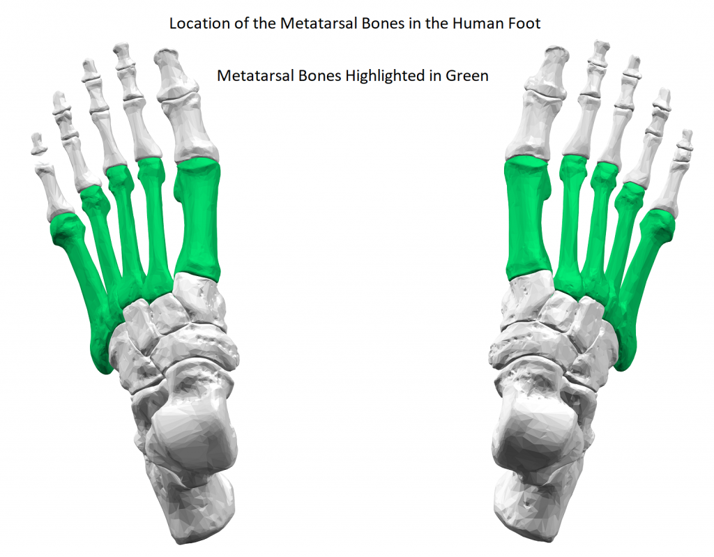 Broken Metatarsal Diagram