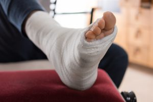 A Broken Metatarsal Guide - 2018 Update - Medical Experts