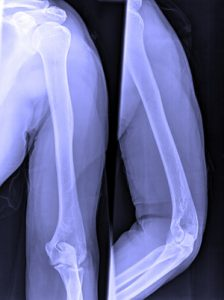 Broken Arm X Ray - Medical Experts
