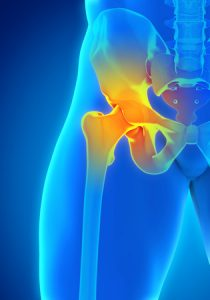 Broken Hip Elderly Recovery Time - Medical Experts