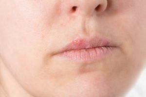 Burns on Lips - Medical Experts