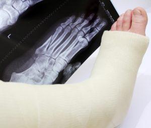 Treatment for Broken Foot - Medical Experts