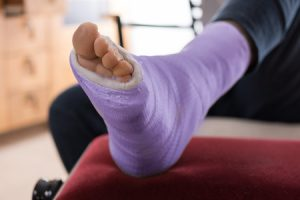 Treatment for a Broken Ankle - Medical Experts